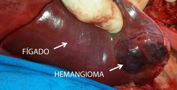 hemangioma_eduardo_ramos_1