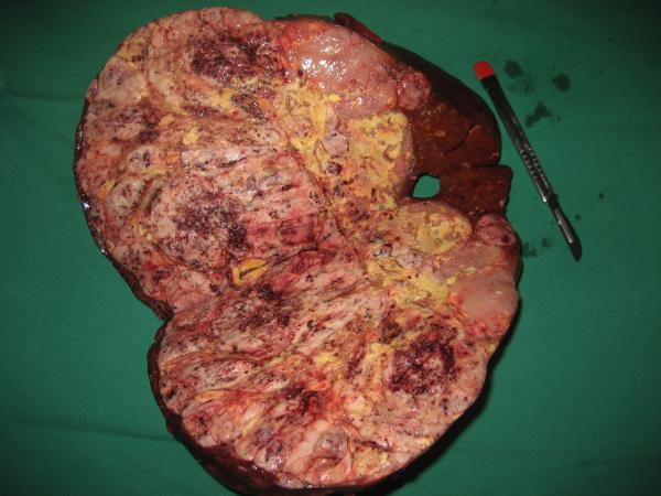 hepatocarcinoma_eduardo_ramos_8