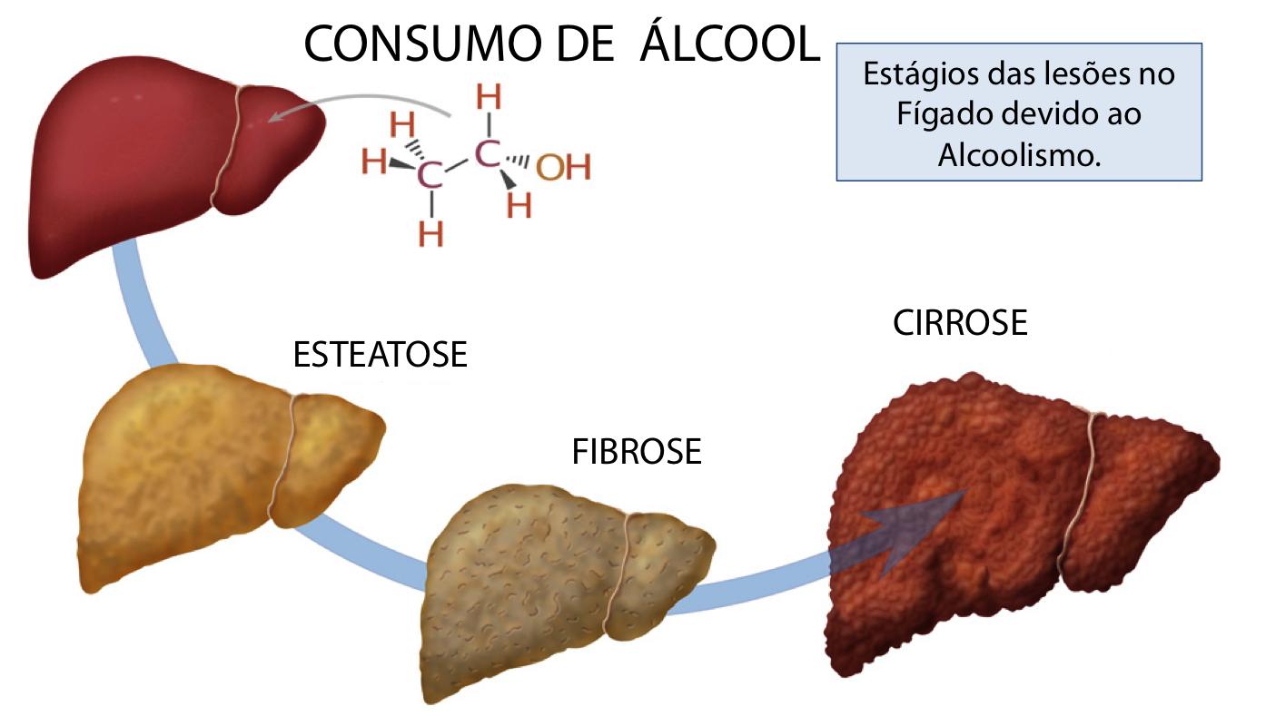 hepatite_dr_eduardo_ramos_8