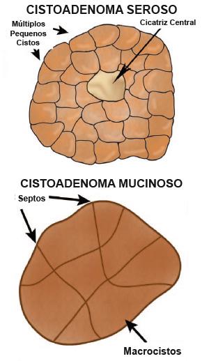cistoseroso_4